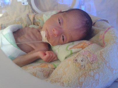 kondisi bayi aqila 23 sept 2013